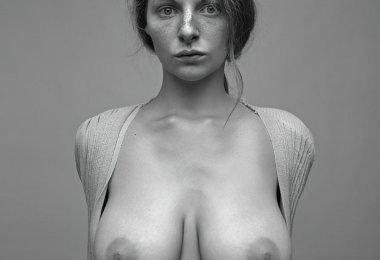 Mulher com Sardas